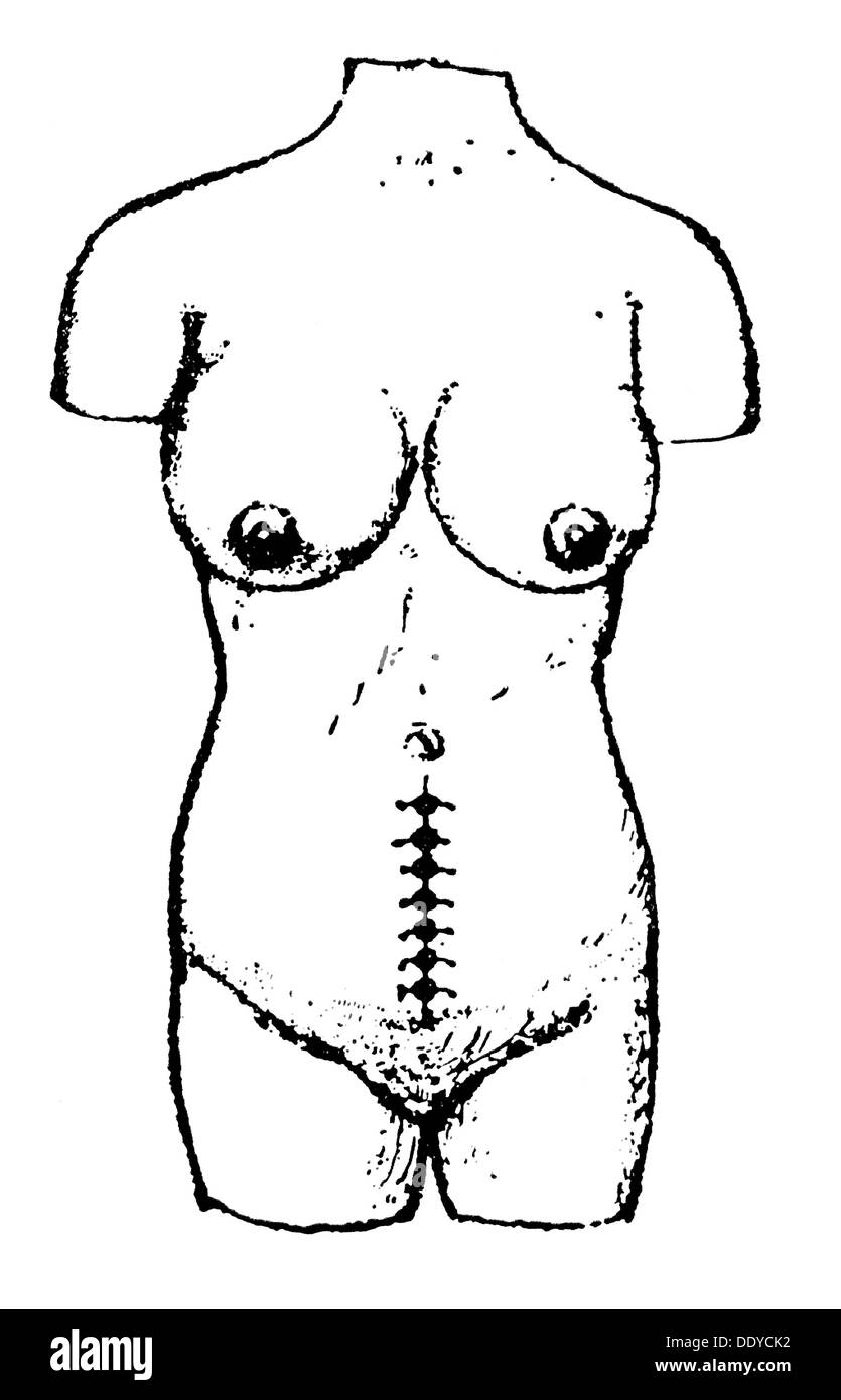 medicine, birth / gynecology, female torso with sewed up abdominal wall after Caesarean, Uganda, drawing, after Robert Felkin (1853 - 1926), after 1879, Additional-Rights-Clearences-NA - Stock Image