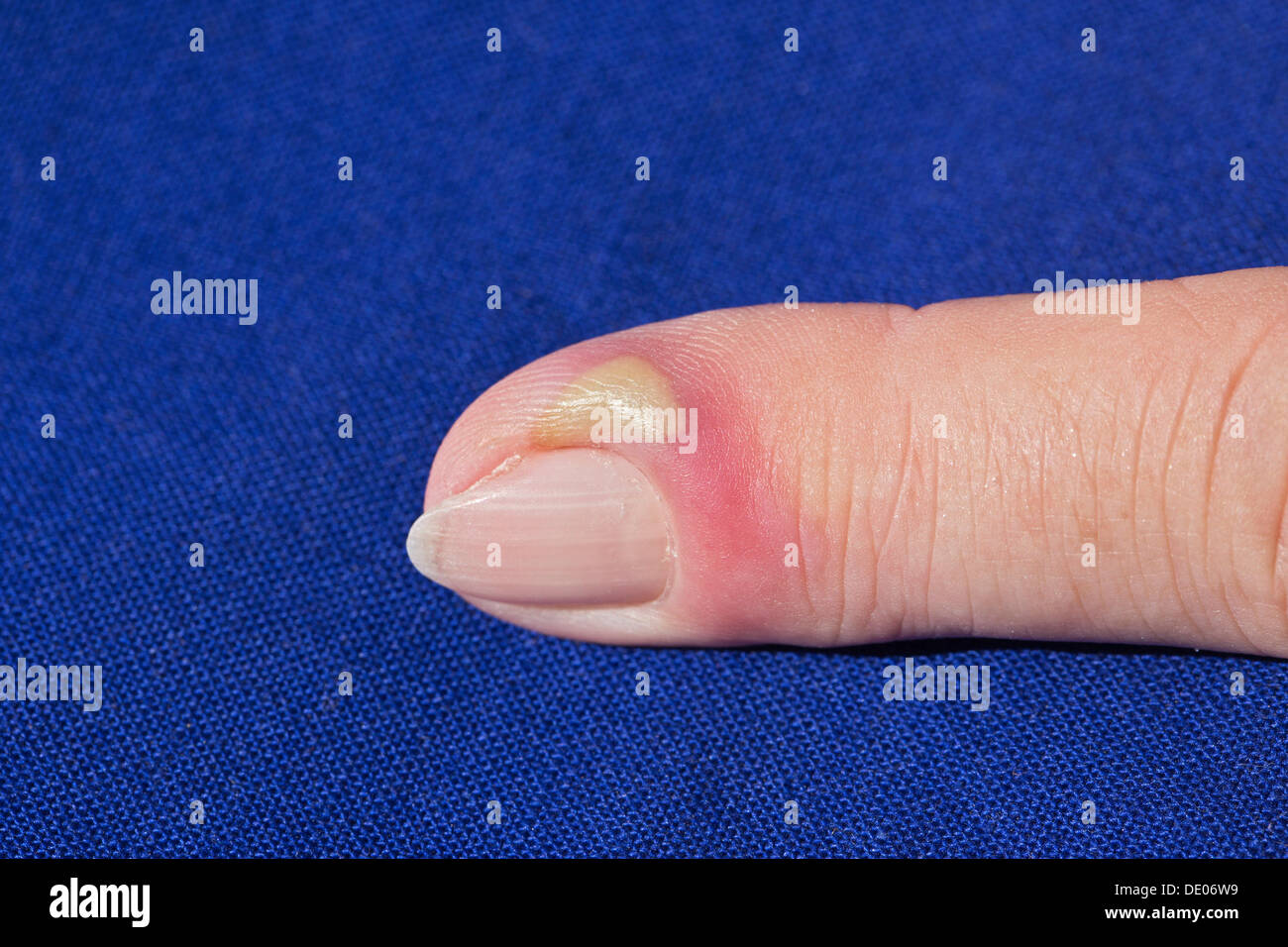 Bacterial infection, inflammation, index finger, pus, abscess - Stock Image