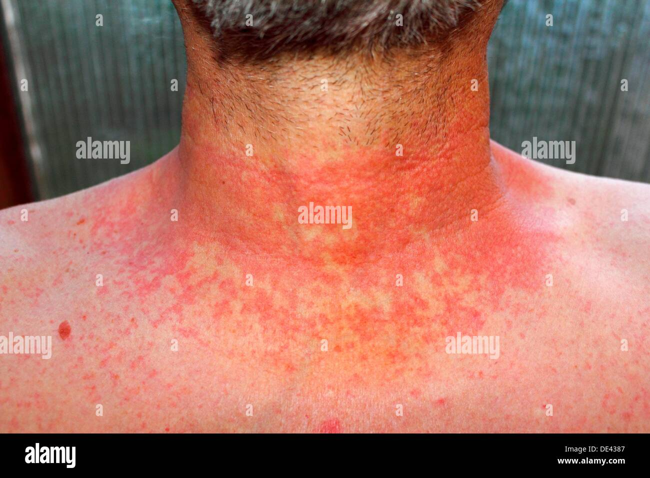 dermititis should be dermatitisRed skin rash on a man´s neck and chest due to scarlet fever, fever, dermatitis or eczema - Stock Image