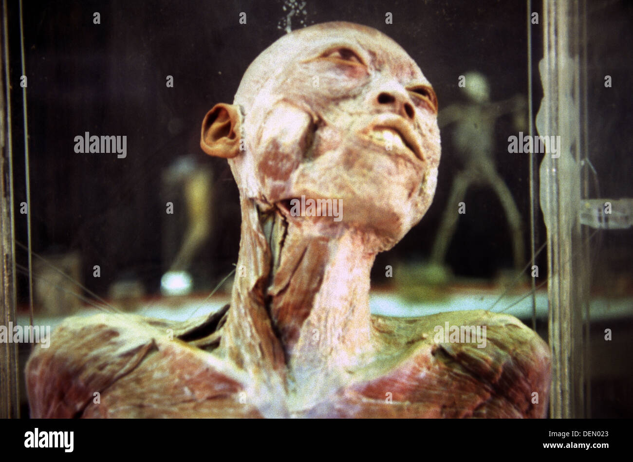 Corpse in formaldehyde jar displayed in the Beijing Museum of Natural History located at Dongcheng District, Beijing China - Stock Image