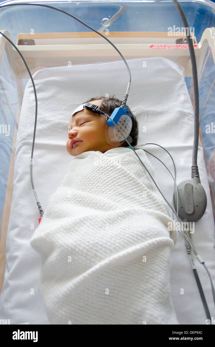 Newborn baby hearing screening test Auditory Brainstem Response - Stock Image