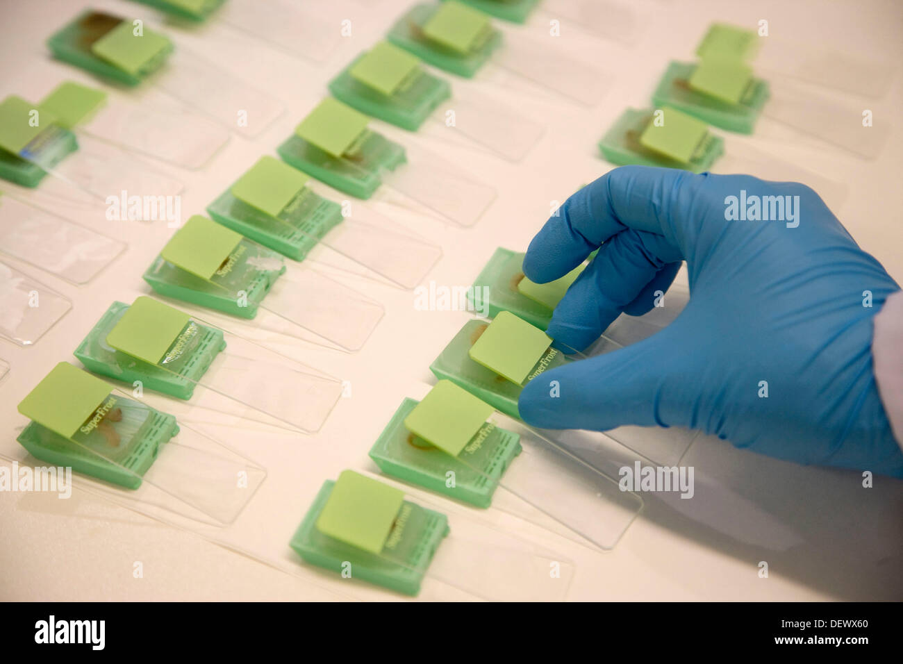 Microscope slides, Laboratory of Pathological anatomy, Departamento de Producción y Sanidad Animal, Neiker Tecnalia, Stock Photo