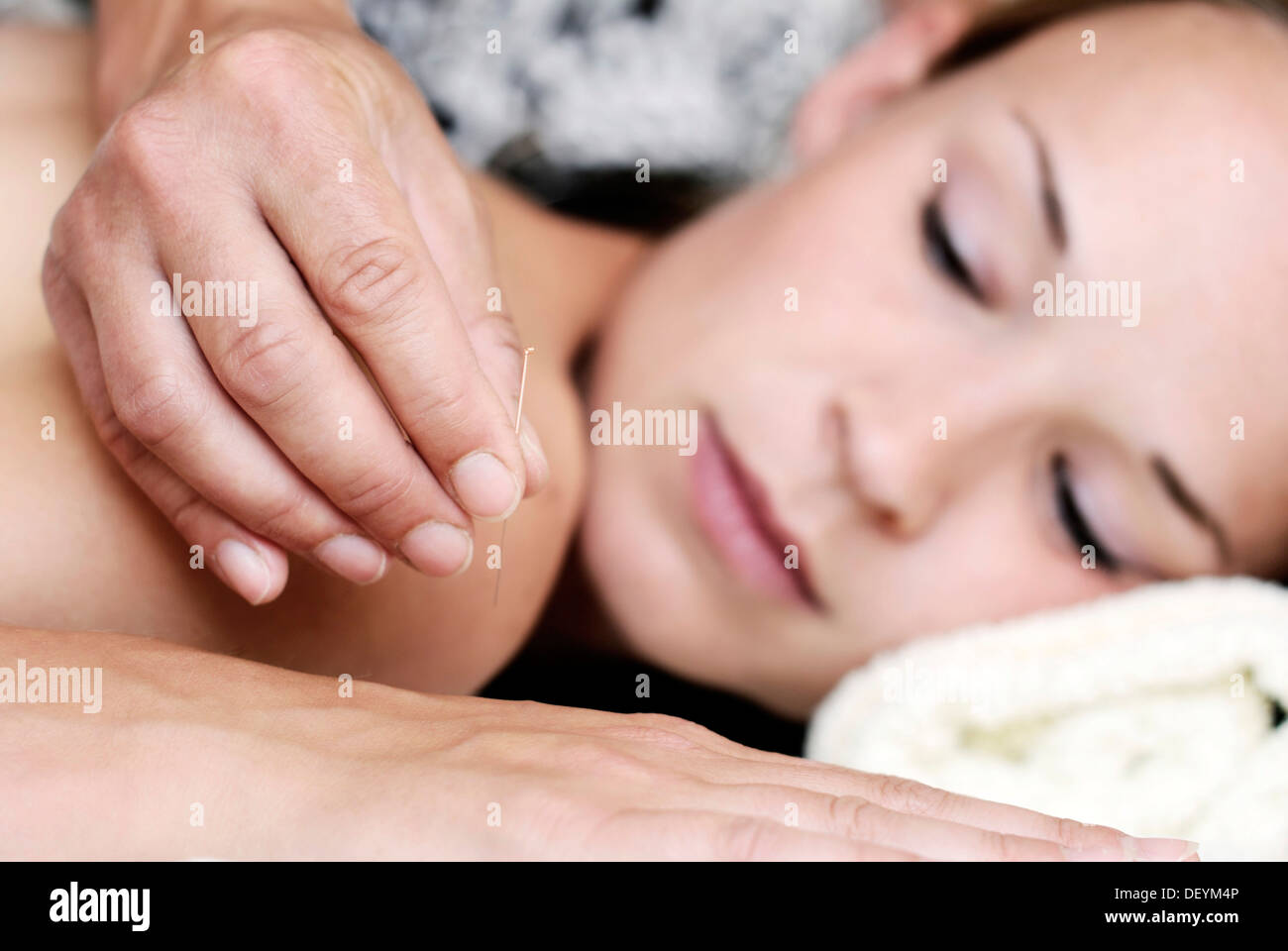 Young woman receiving acupuncture therapy in a natural healing practice - Stock Image