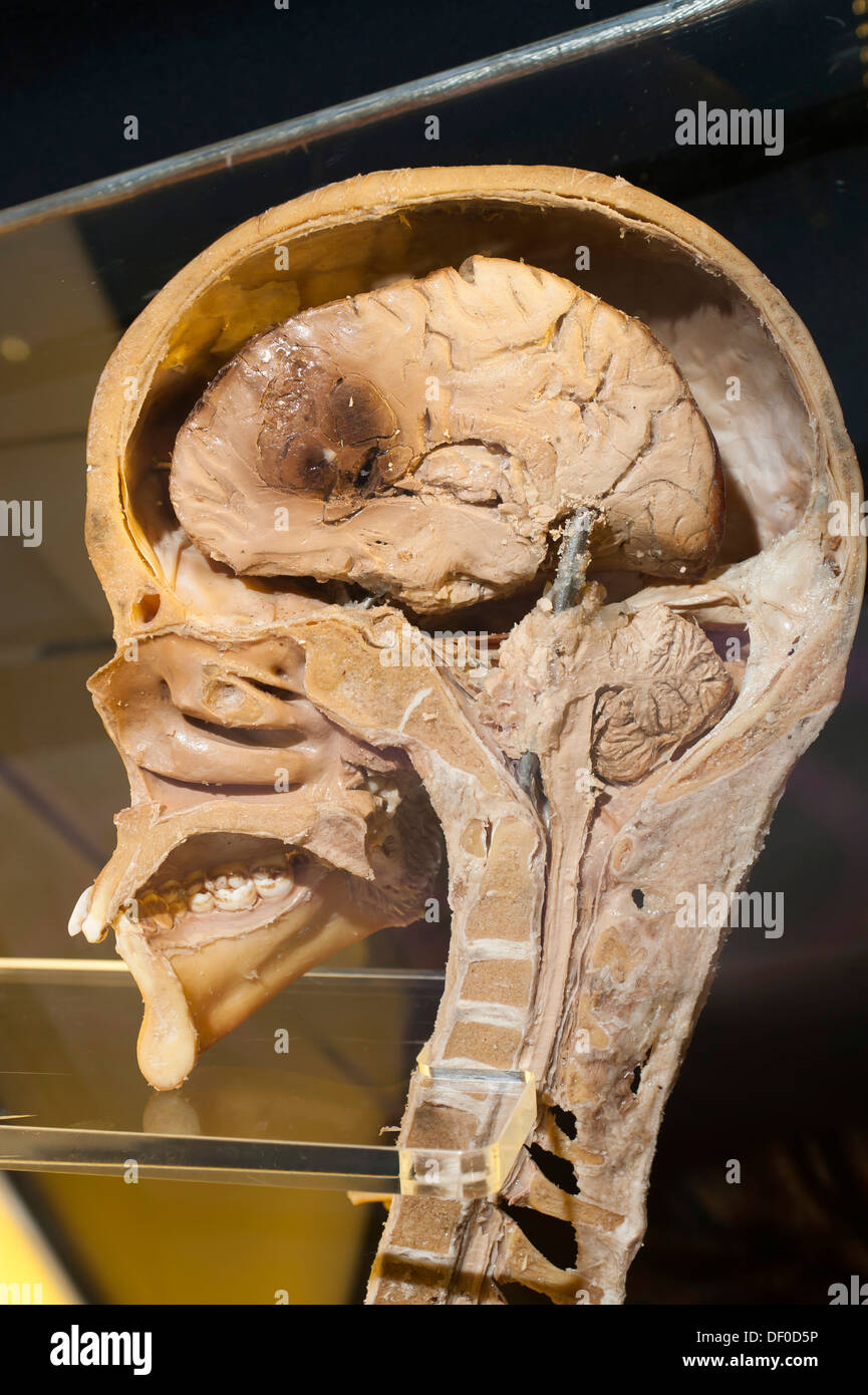 Plastination specimen of sagital section of head and neck - Stock Image
