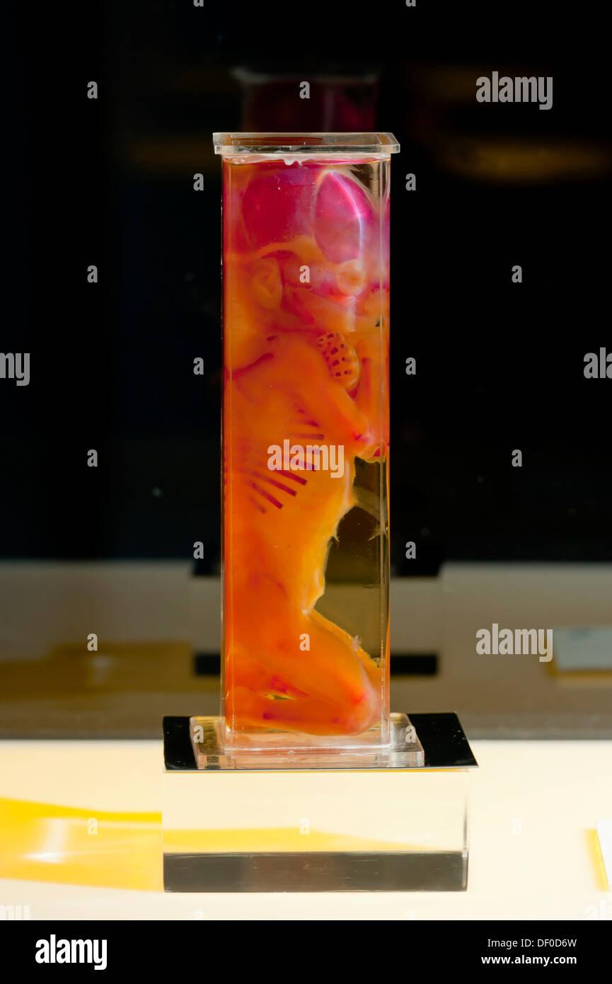 Plastination specimen of fetus - Stock Image