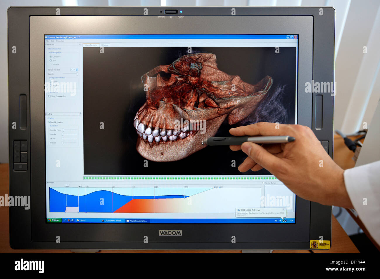 Volume rendering, Health and Biomedical applications, Vicomtech-IK4 Visual Interaction and Communication Technologies Centre, - Stock Image