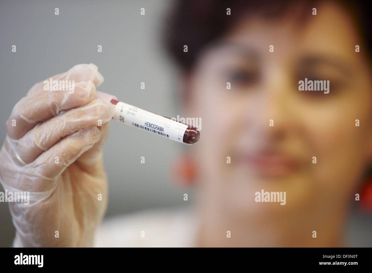 Blood sample, haematology. Hospital Universitario de Gran Canaria Doctor Negrin, Las Palmas de Gran Canaria. Canary Islands, - Stock Image