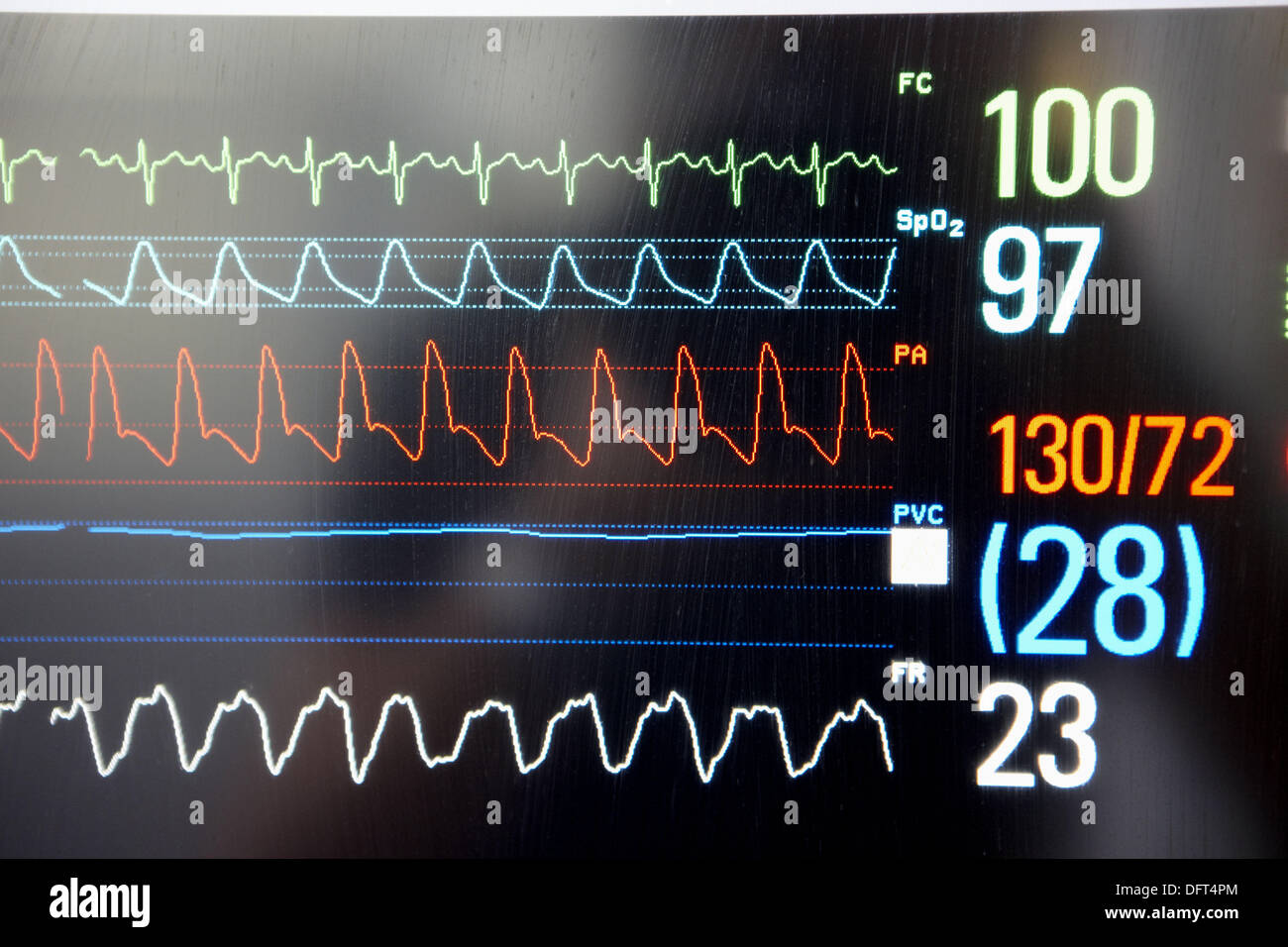 Vital signs, Resuscitation unit. Hospital Universitario de Gran Canaria Doctor Negrin, Las Palmas de Gran Canaria. - Stock Image