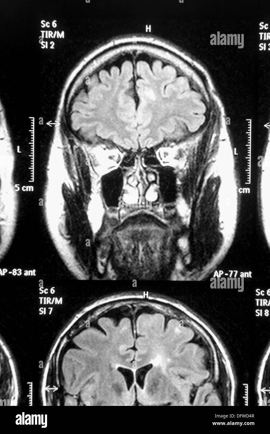 magnetic resonance of the brain coronal plane stock photo 61410071