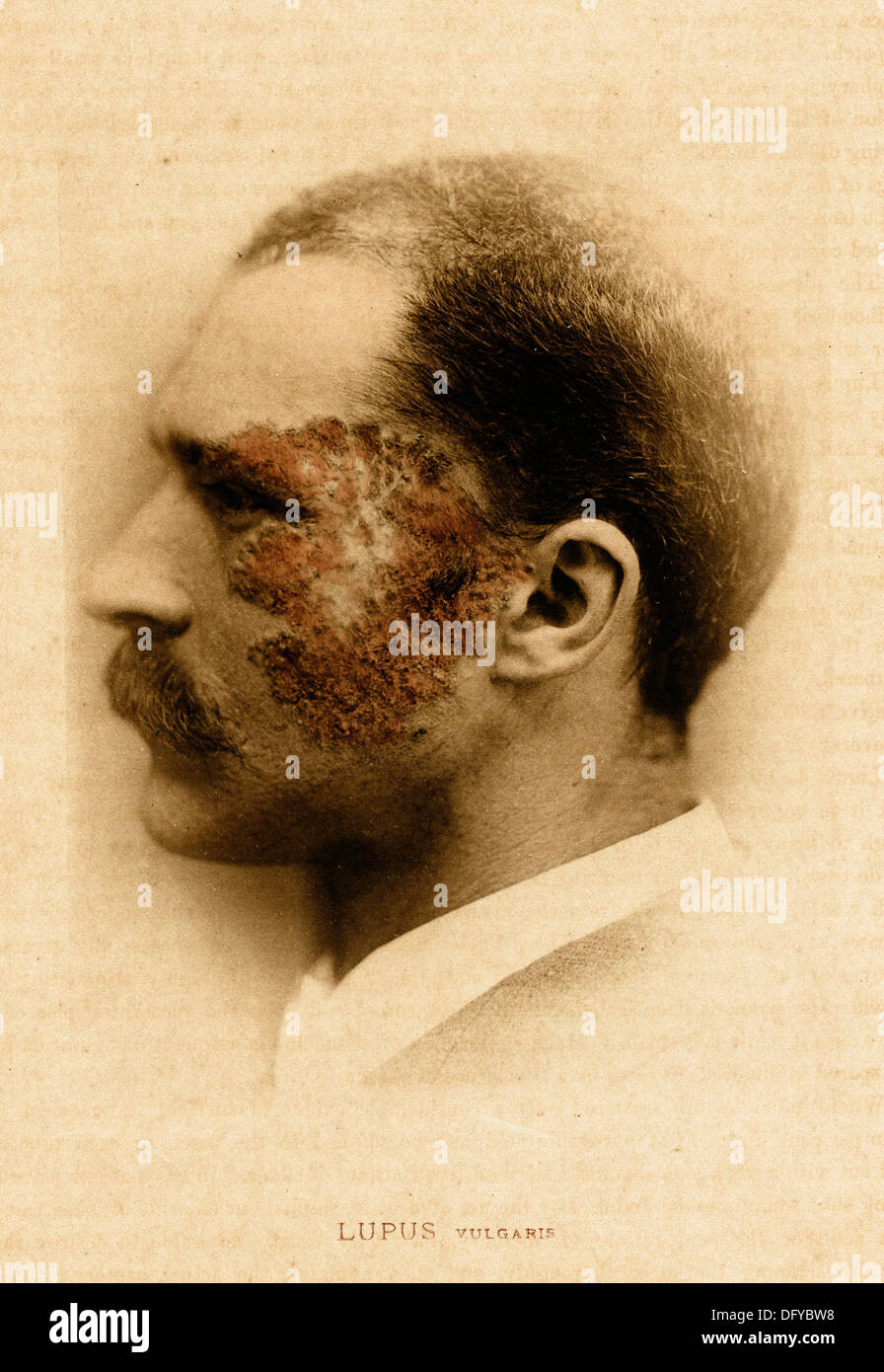 Lupus, ca 1881, by E. Bierstadt - Stock Image