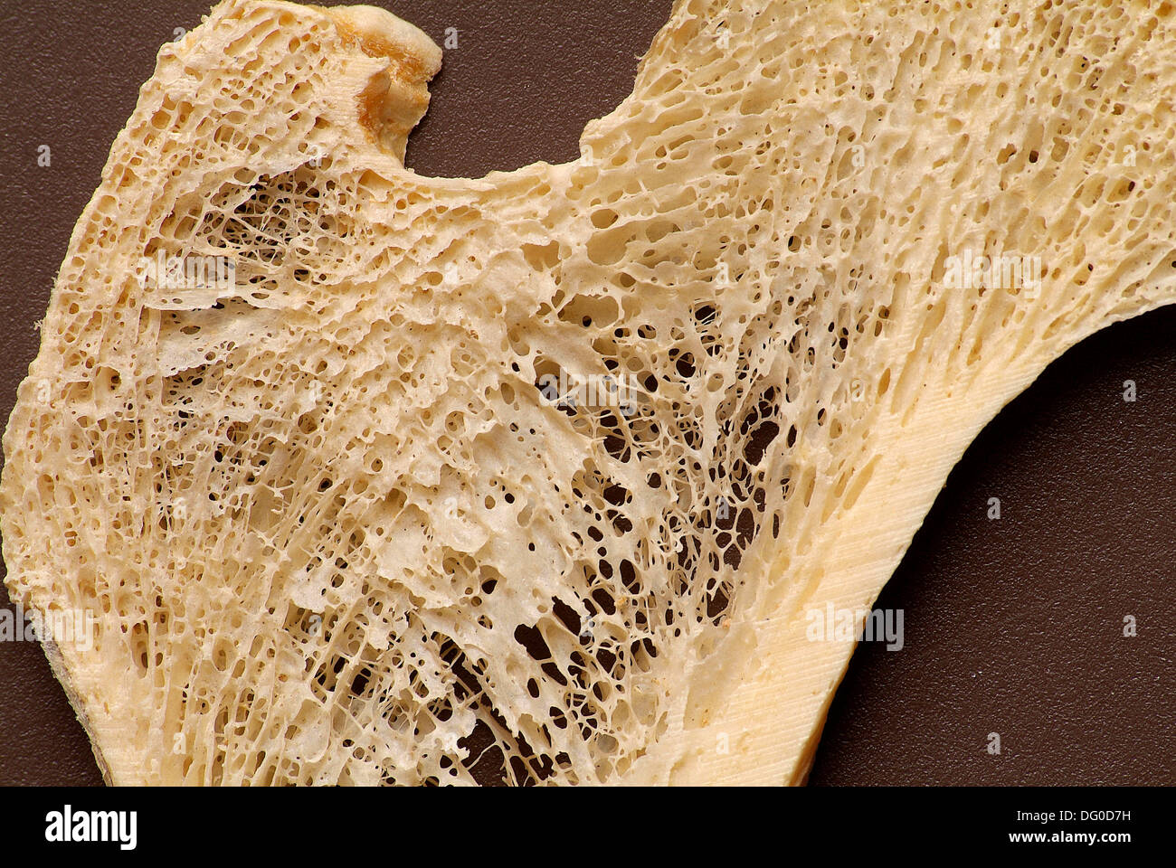 Upper Femur, frontal longitudinal midsection, calcium deposition, trabecular, cortical, anatomy anatomy, zoology - Stock Image