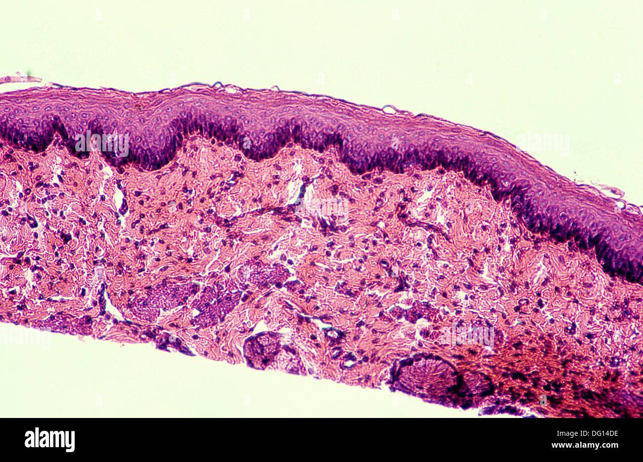 Stratified flat epithelium, 200 X. Epithelium rests on connective tissue below. Skin, keratin. optical microscope, - Stock Image