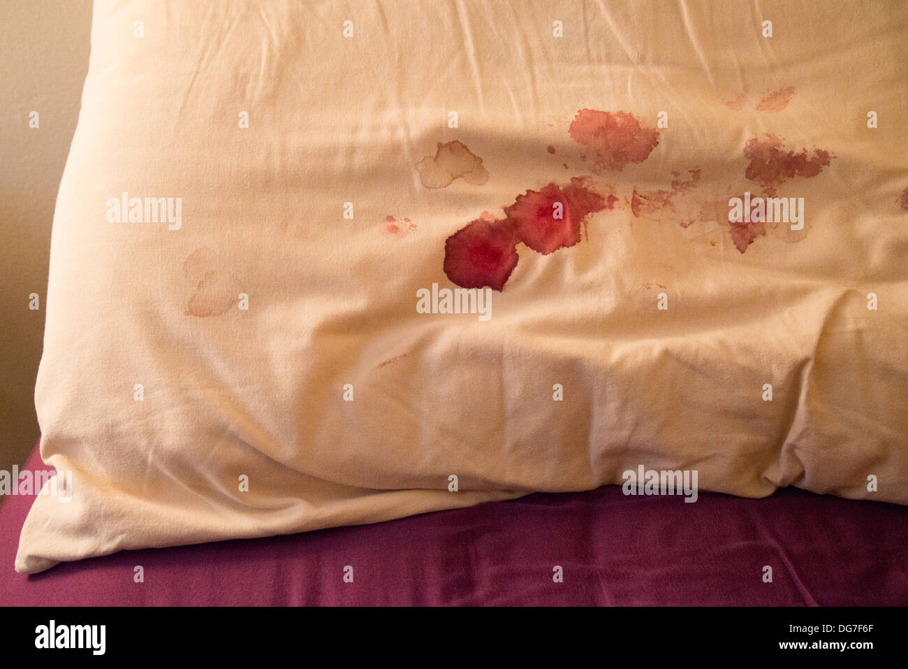 blood on pillow - Stock Image