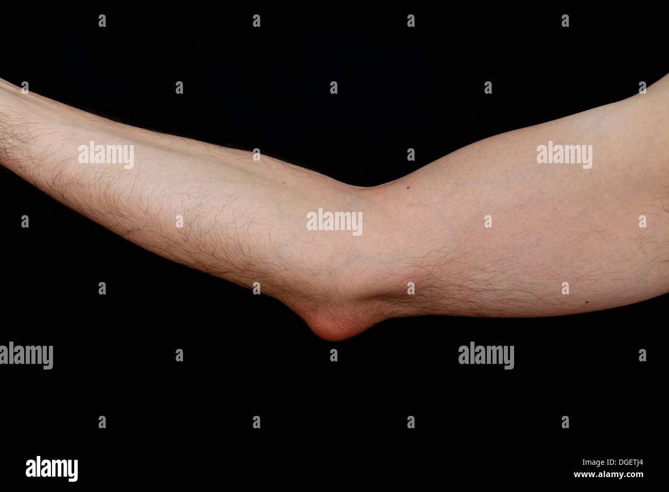 Olecranon bursitis, is a medical condition caused by the ...