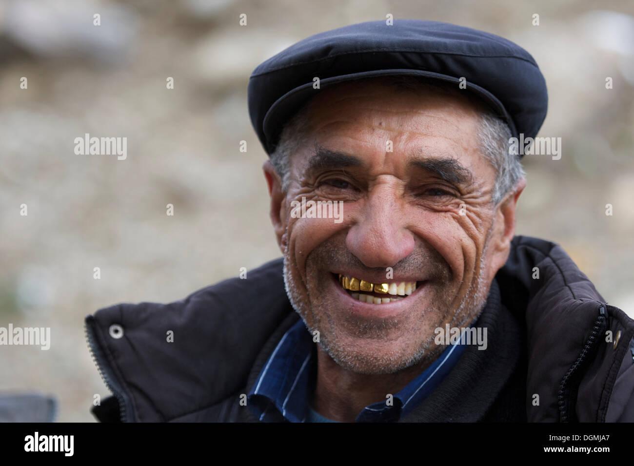 Gold Teeth Stock Photos & Gold Teeth Stock Images - Alamy