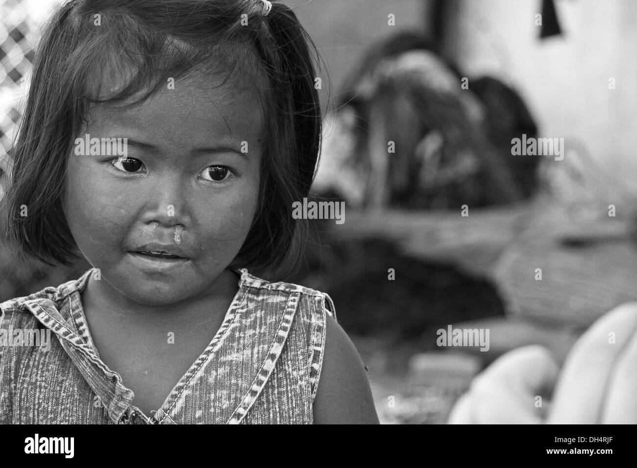 Vietnamese girl with a runny nose. - Stock Image