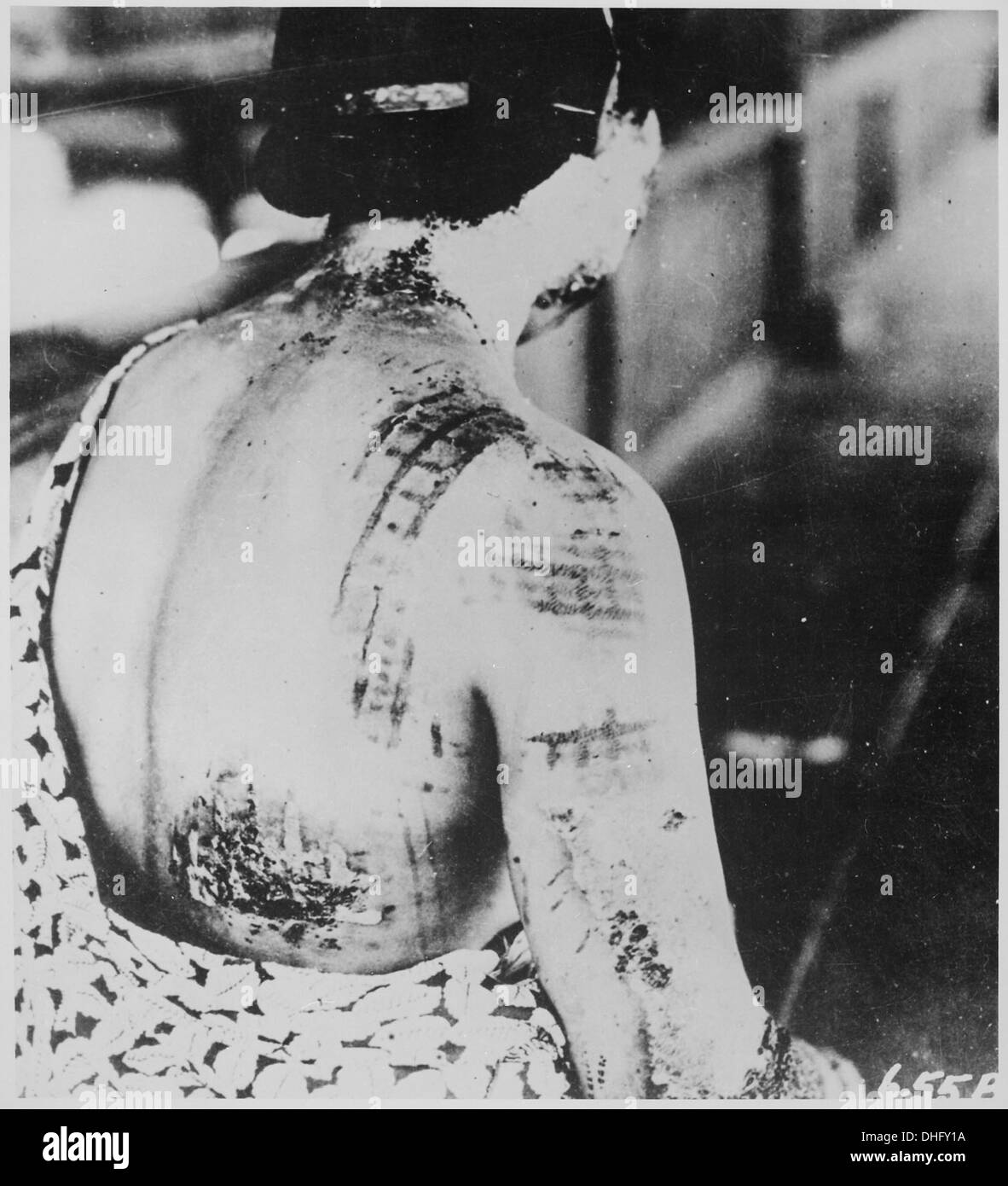 The patient's skin is burned in a pattern corresponding to the dark portions of a kimono worn at the time of the explos 519685 - Stock Image