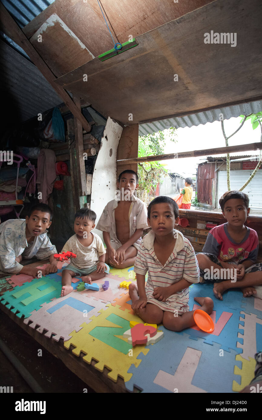 Children Disfigured family crippled poor Bali poverty challenged extreme poor bellow standard Indonesia 29 house Stock Photo