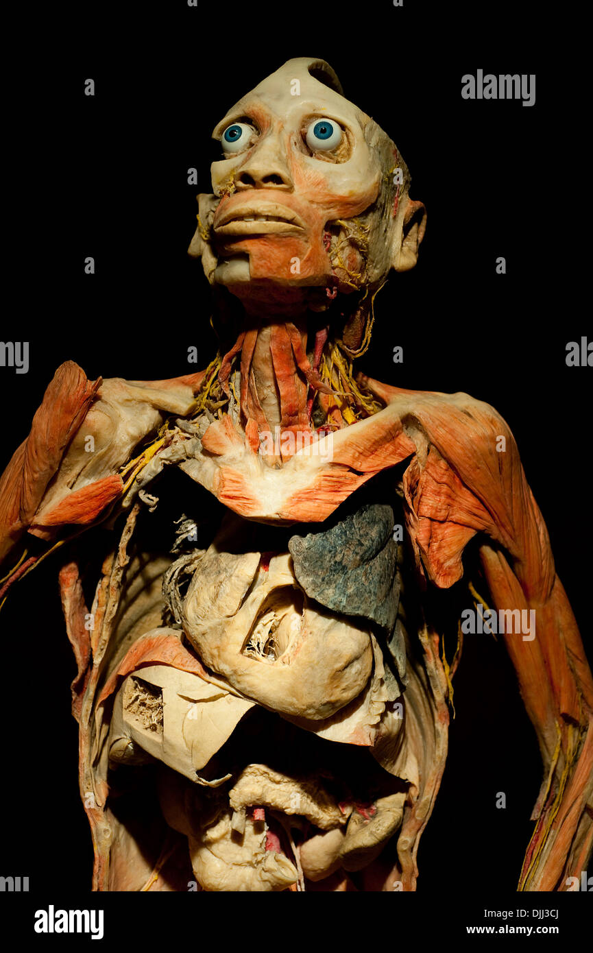 Preserved human body dissected to display the internal organs. It is ...