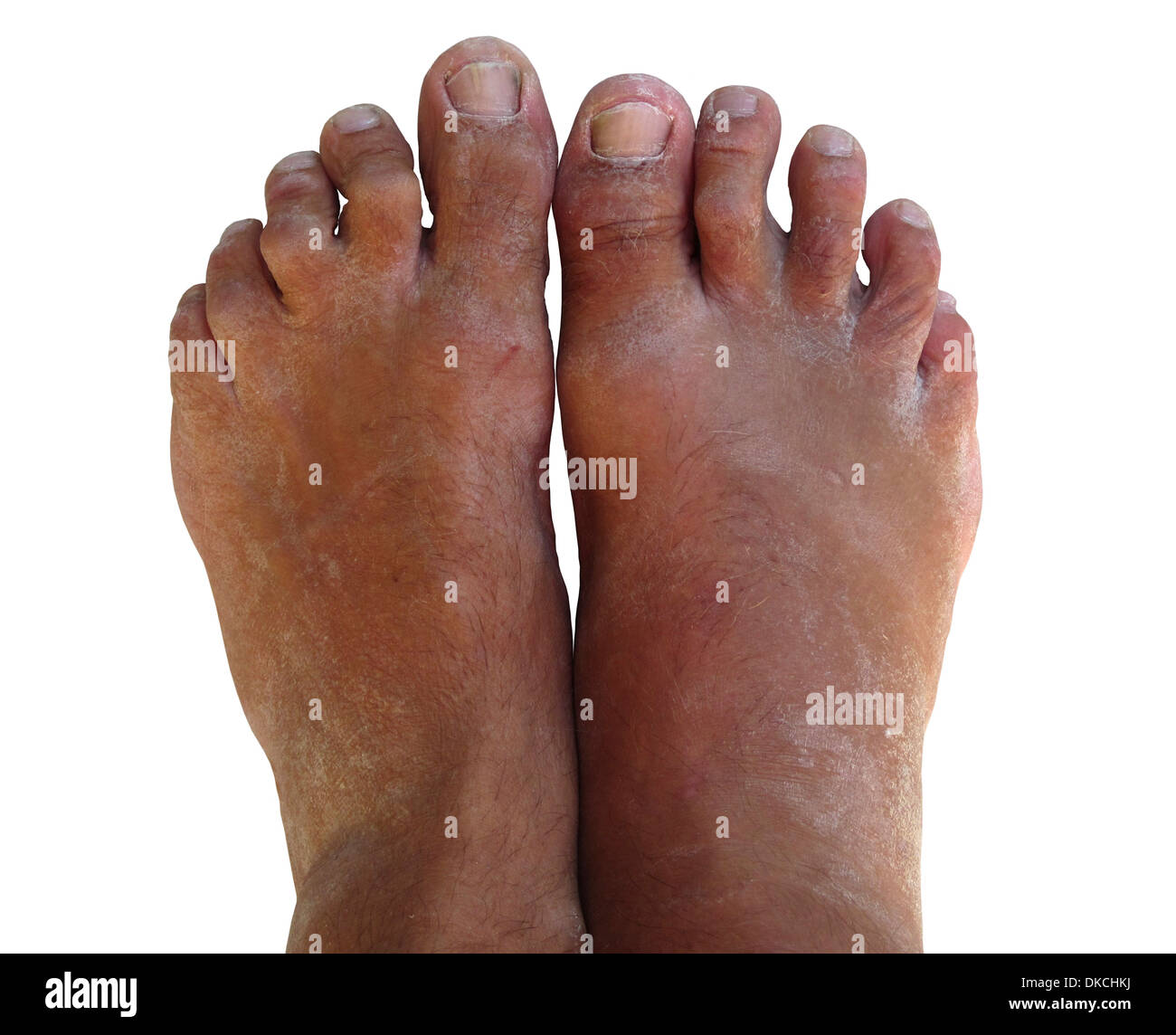 A pair of bare feet looking worse for wear. They are dry, scaly, and just ugly. - Stock Image