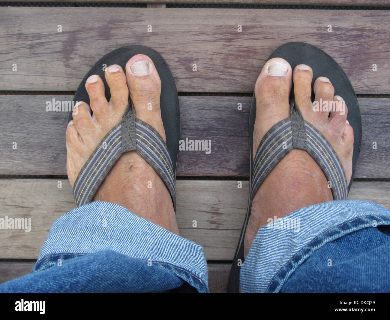 A pair of bare feet in sandals or flip flops. A mosquito is biting the left foot. - Stock Image