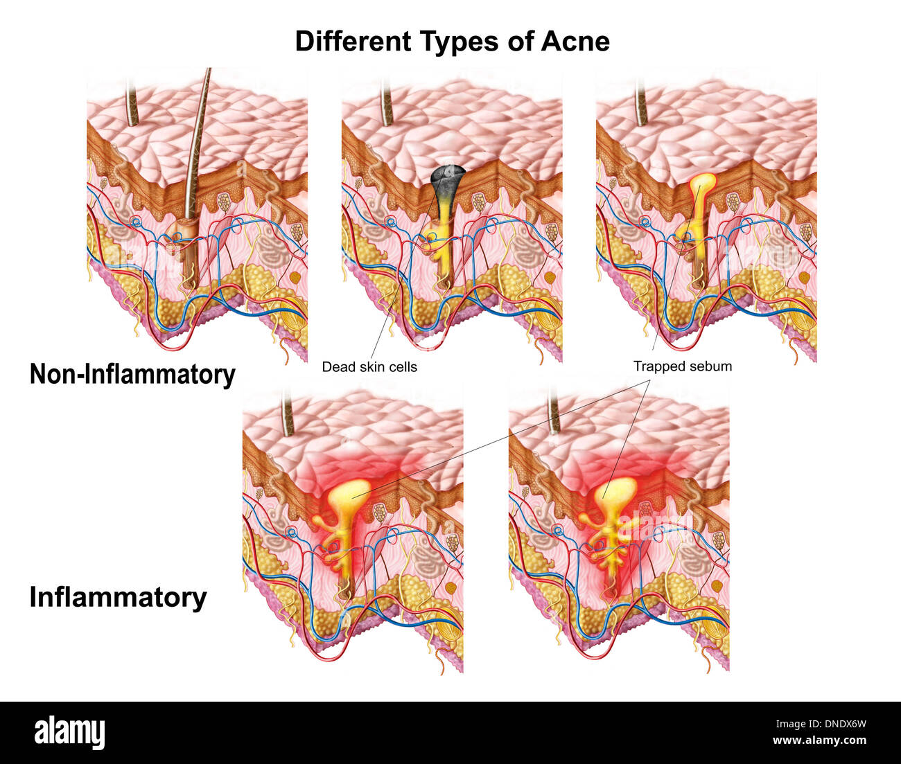 Different types of acne, non-inflammatory and inflammatory. - Stock Image