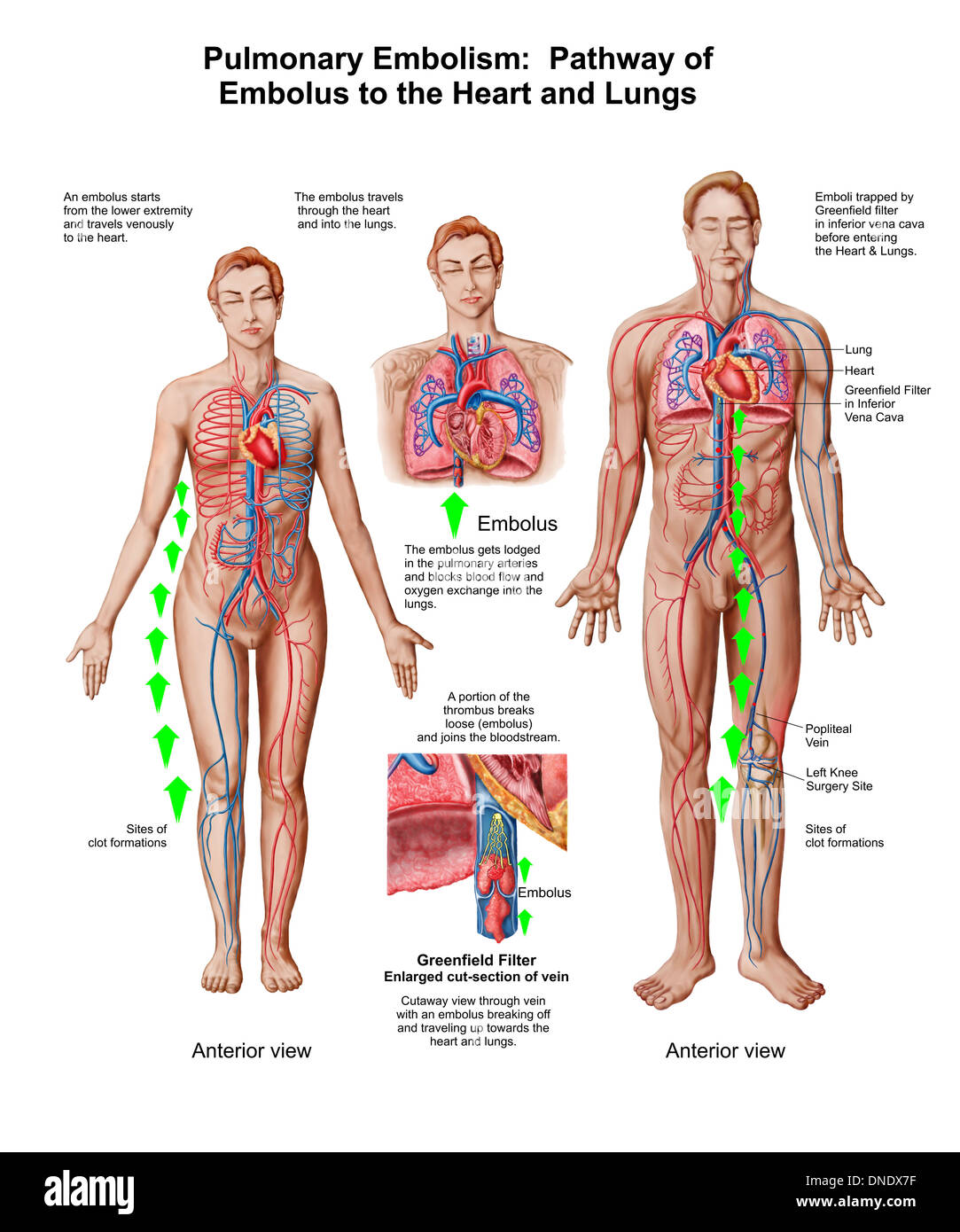 Male Chest Anatomy Heart Veins Stock Photos & Male Chest Anatomy ...