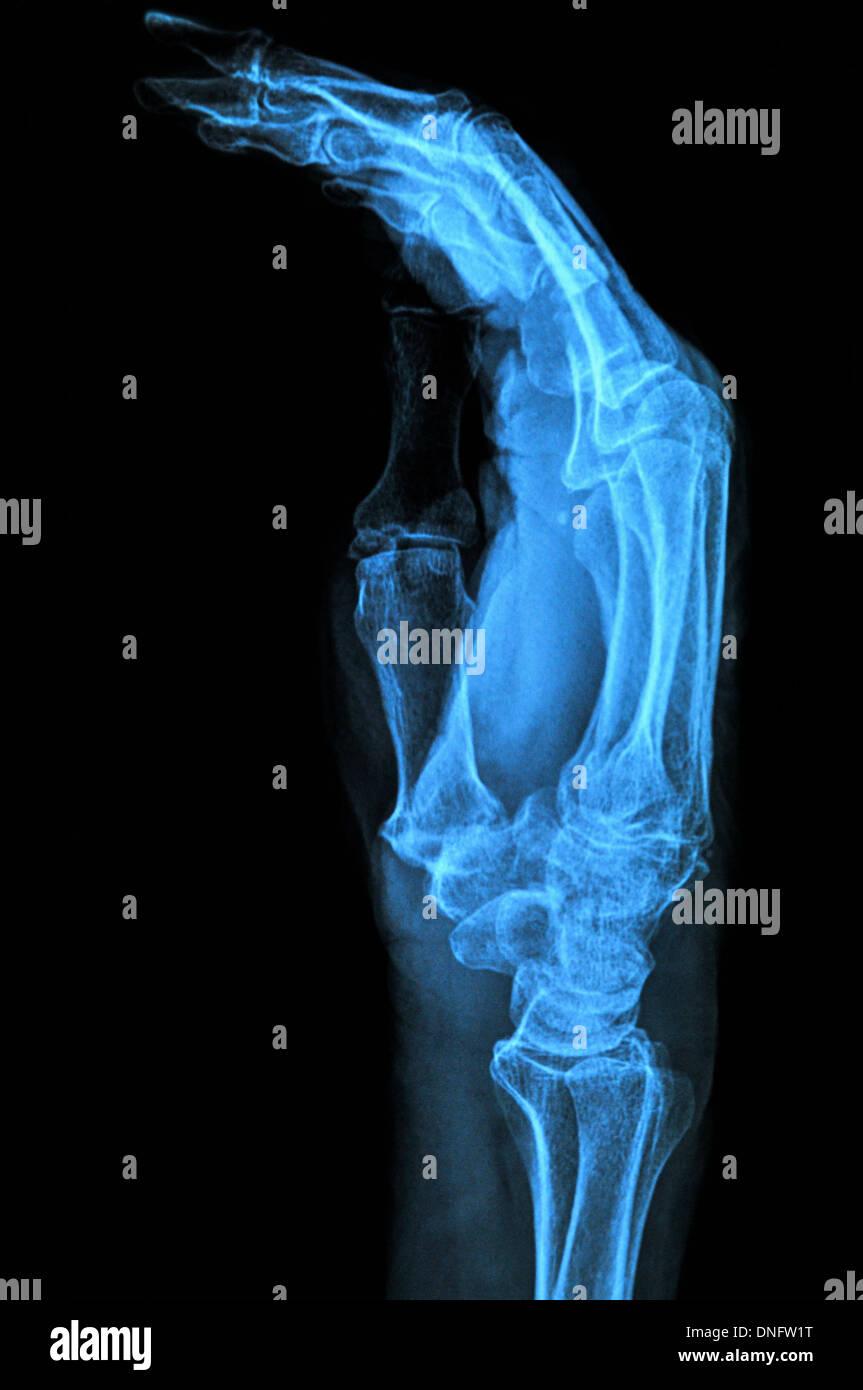 Hand xray image medical background - Stock Image