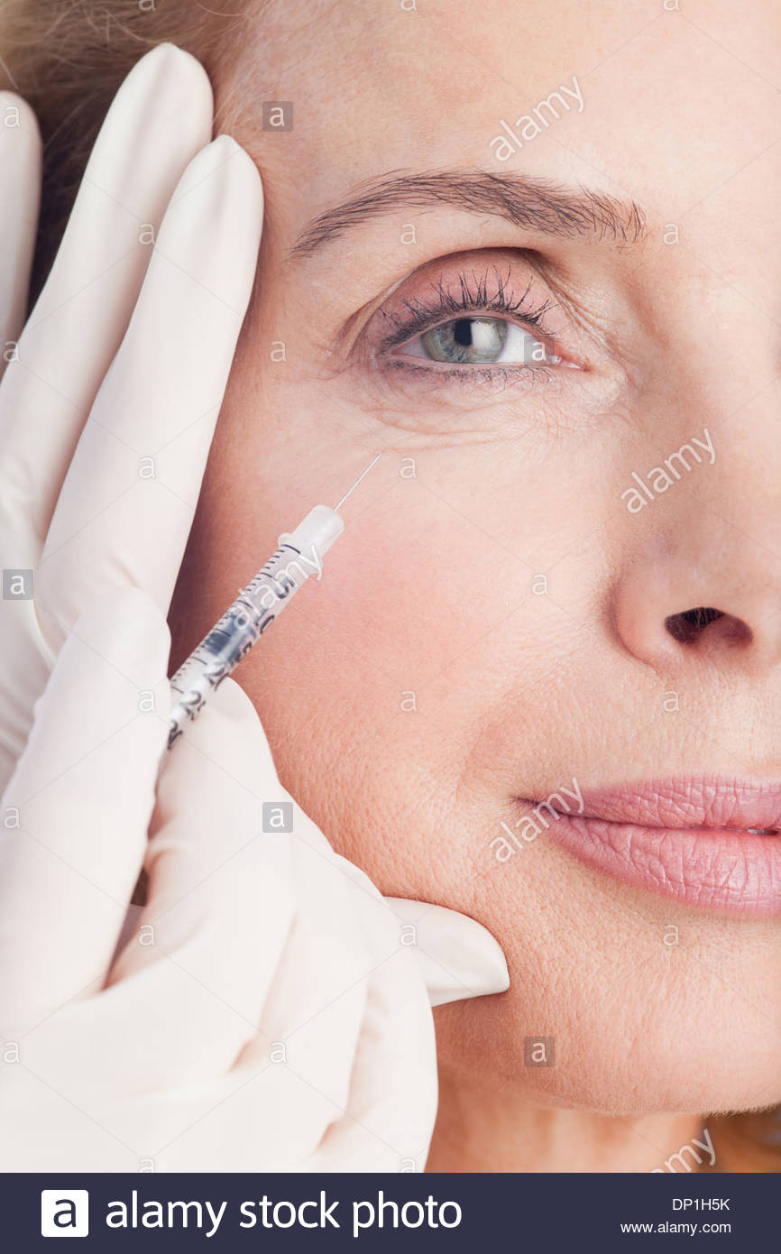 Close up of woman receiving botox injection under eye - Stock Image