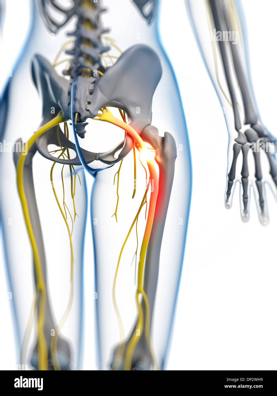 Sciatic Nerve Pain Stock Photos Sciatic Nerve Pain Stock Images