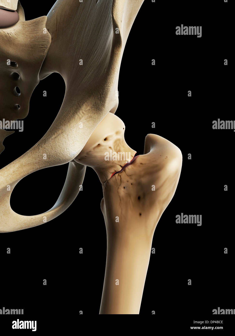 Hip fracture, artwork - Stock Image