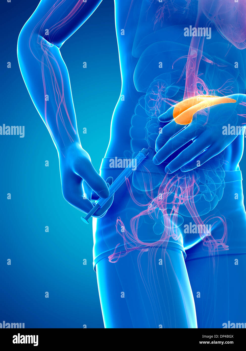 Insulin injection, artwork - Stock Image