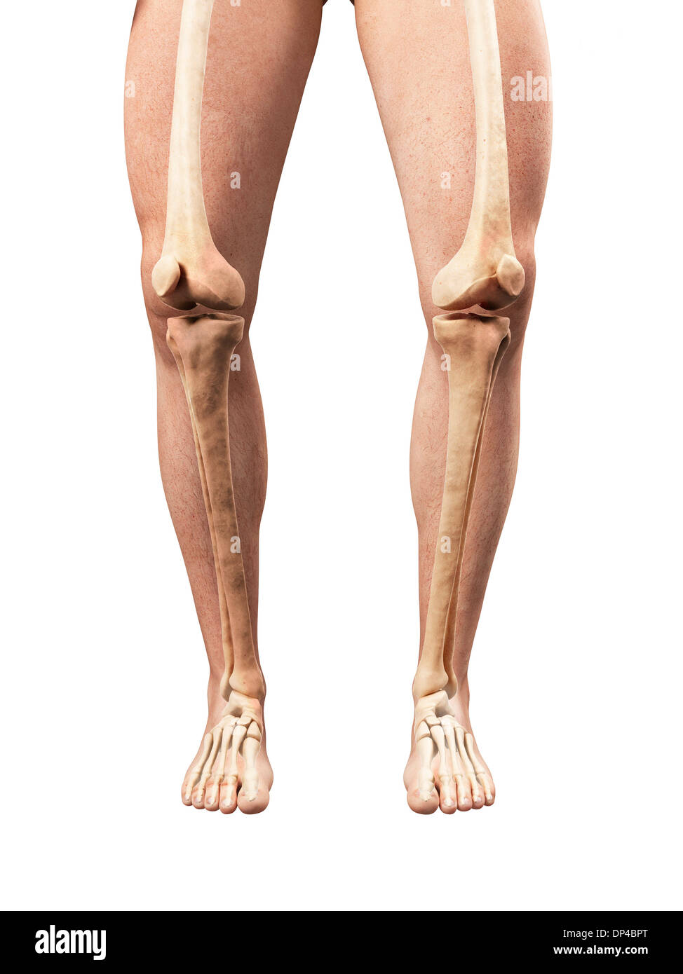 Bowed legs, artwork - Stock Image