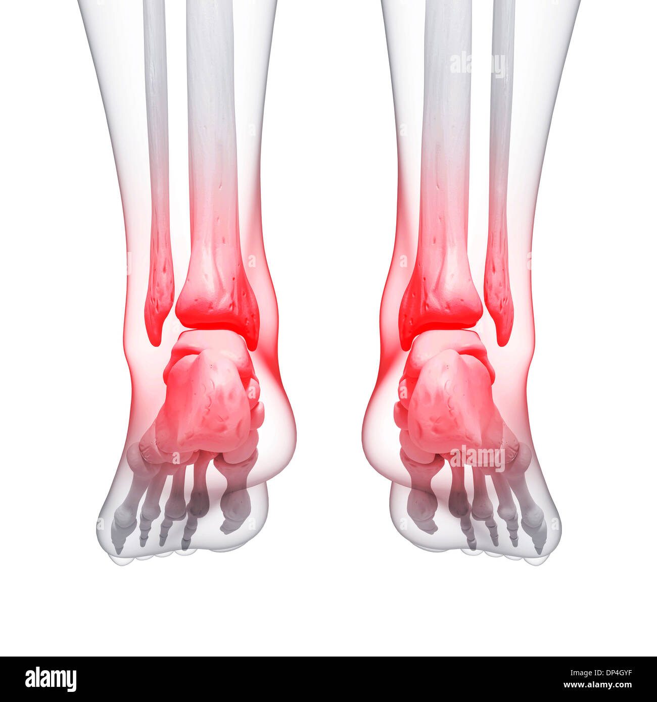Foot Pain Cut Out Stock Images & Pictures - Alamy