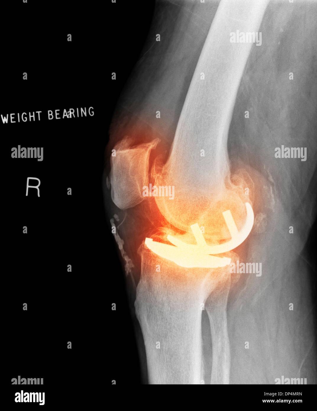 Osteoarthritis of the knee, X-ray - Stock Image