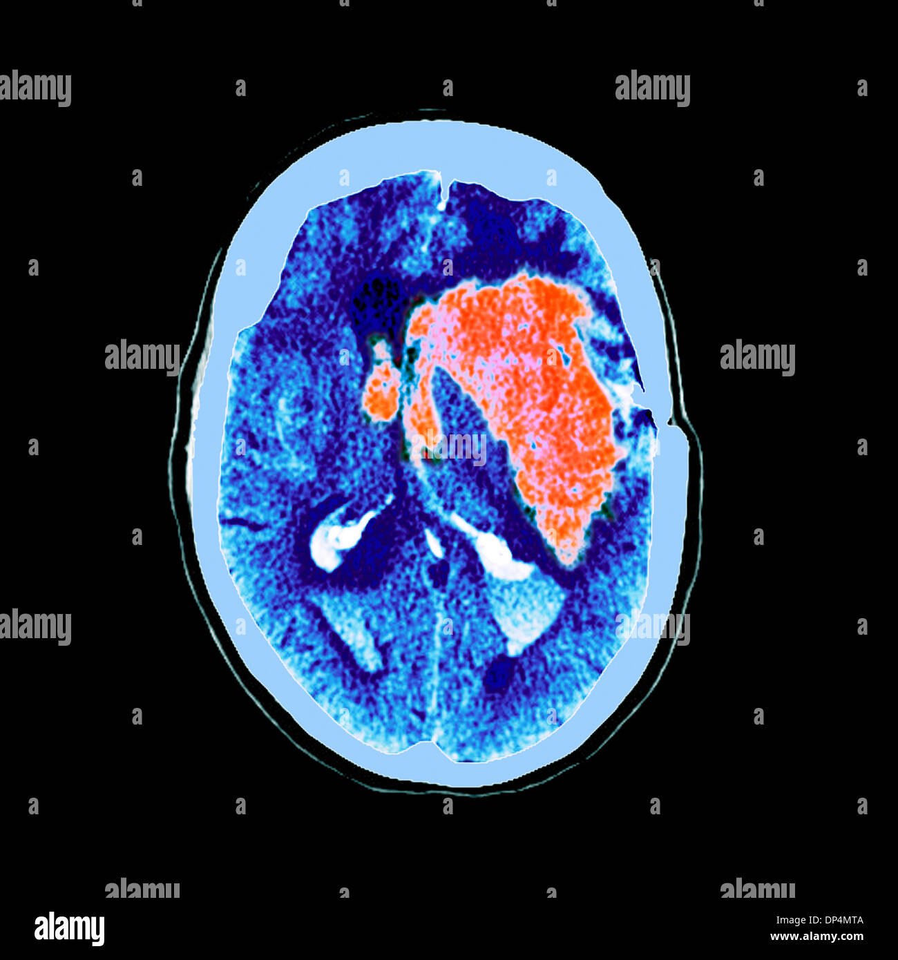 Brain haemorrhage, MRI scan - Stock Image