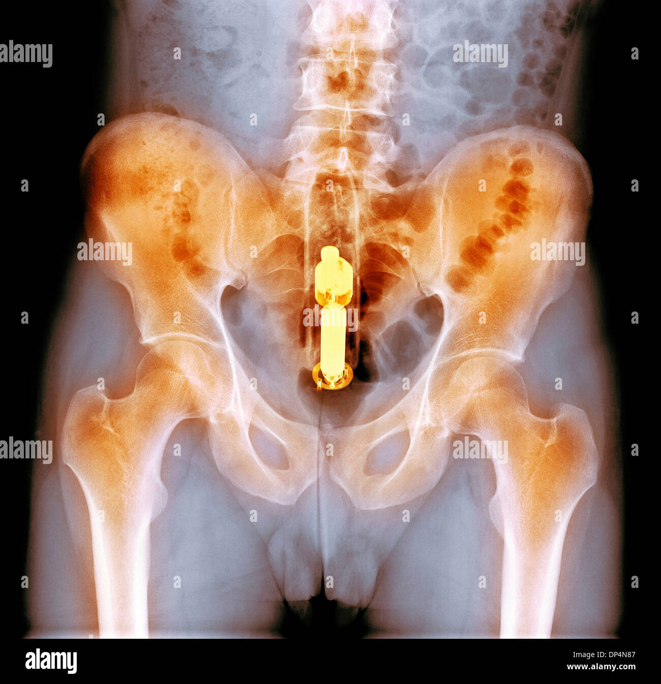 Foreign object in rectum, X-ray - Stock Image