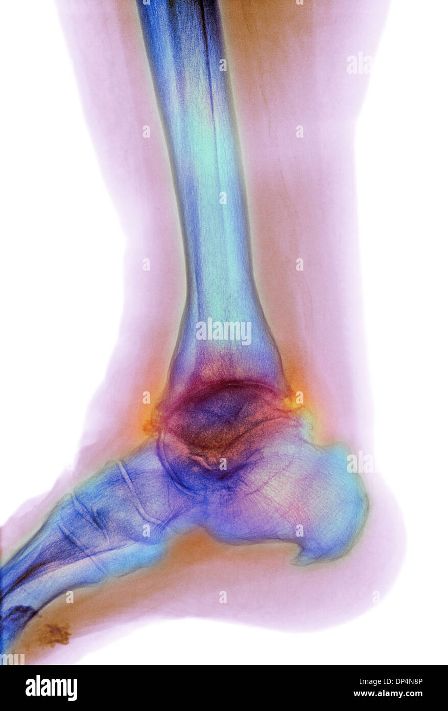 Osteoarthritis of the ankle, X-ray - Stock Image