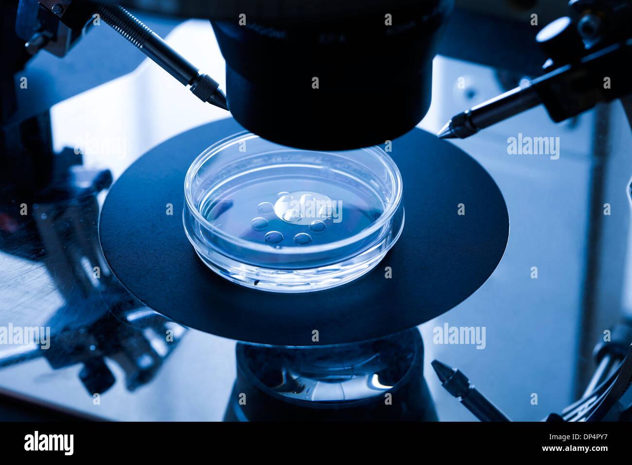 IVF treatment Stock Photo