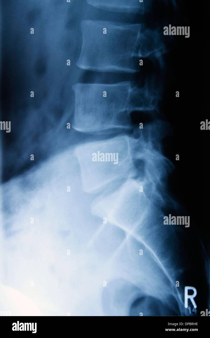 Radiograph of lumbar spine - Stock Image