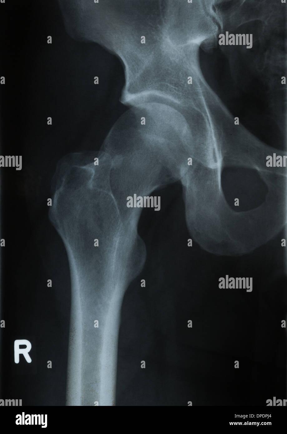 Radiology x-ray photograph of human hip - Stock Image