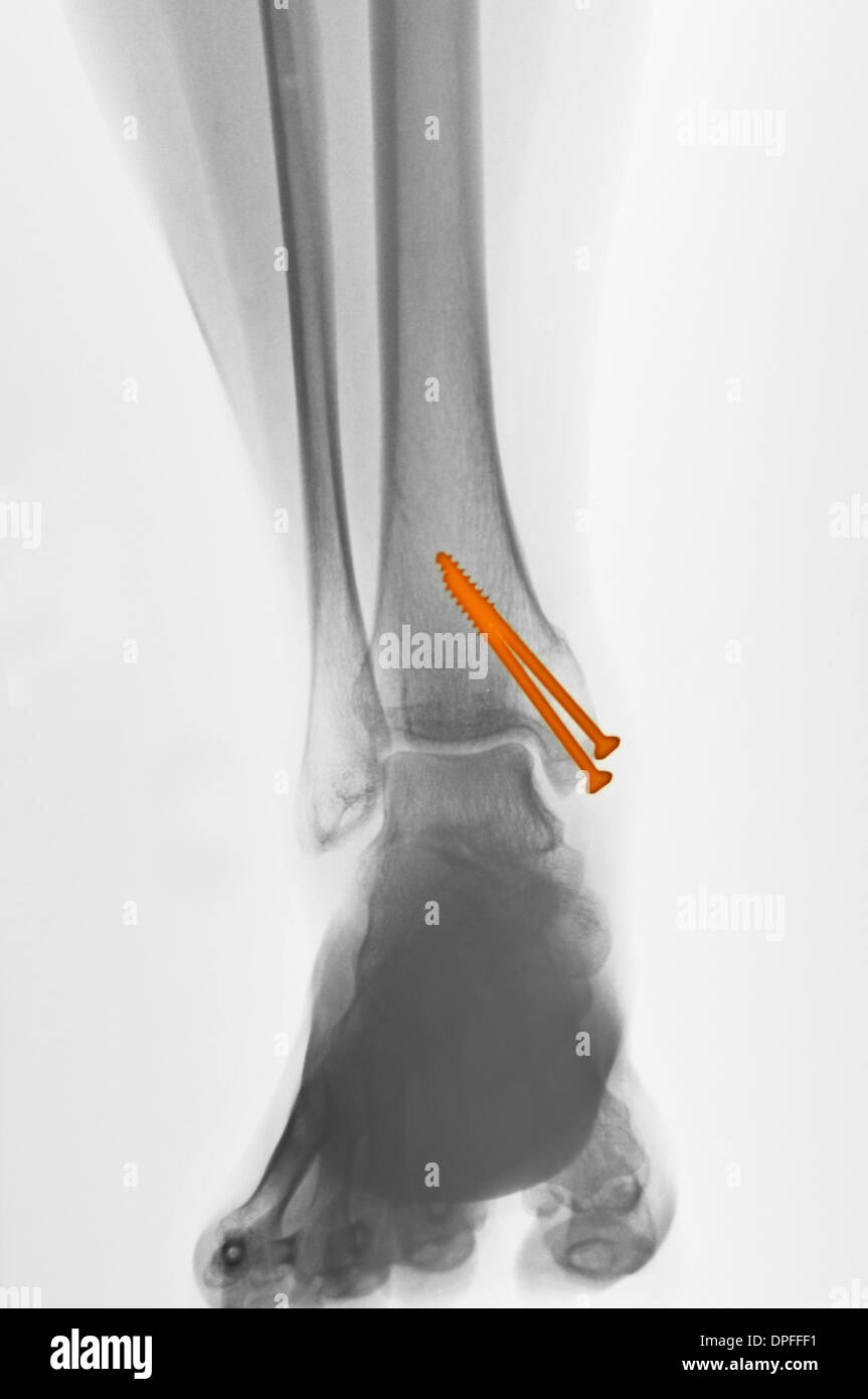 x-ray of an ankle fracture - Stock Image