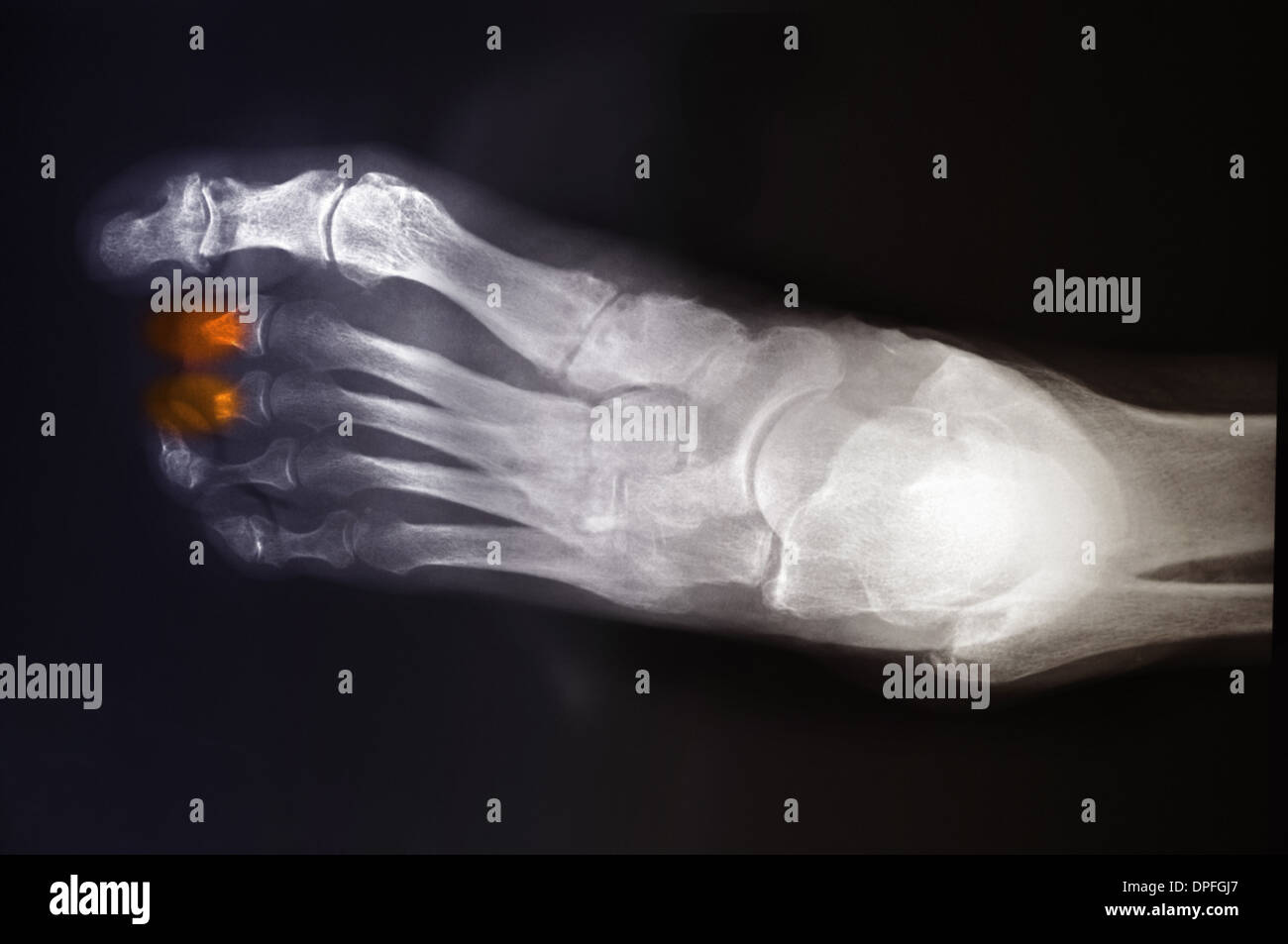 Foot Infection Stock Photos & Foot Infection Stock Images - Alamy
