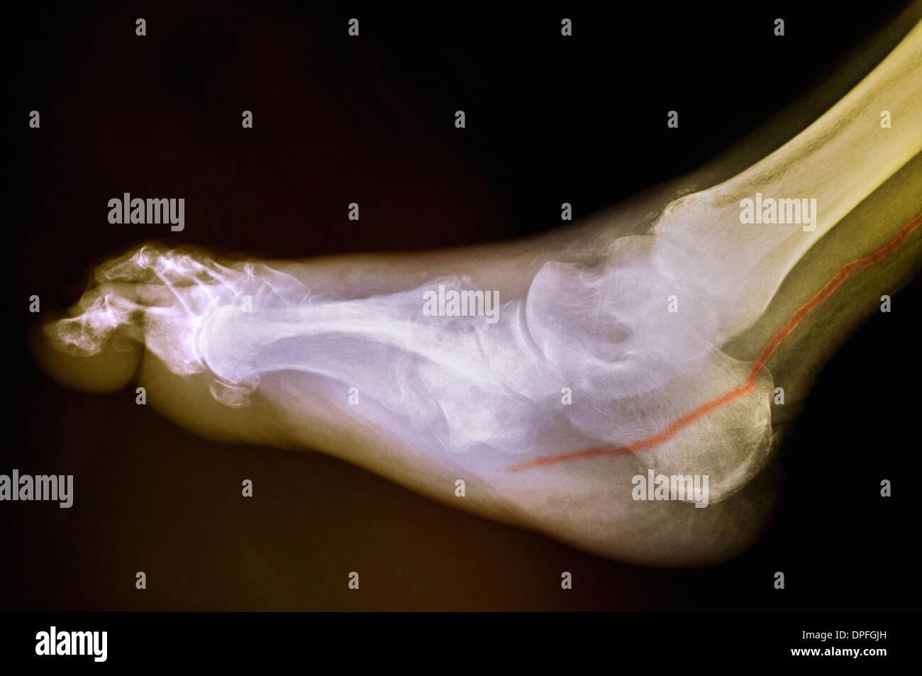 Diabetic Foot Stock Photos Amp Diabetic Foot Stock Images