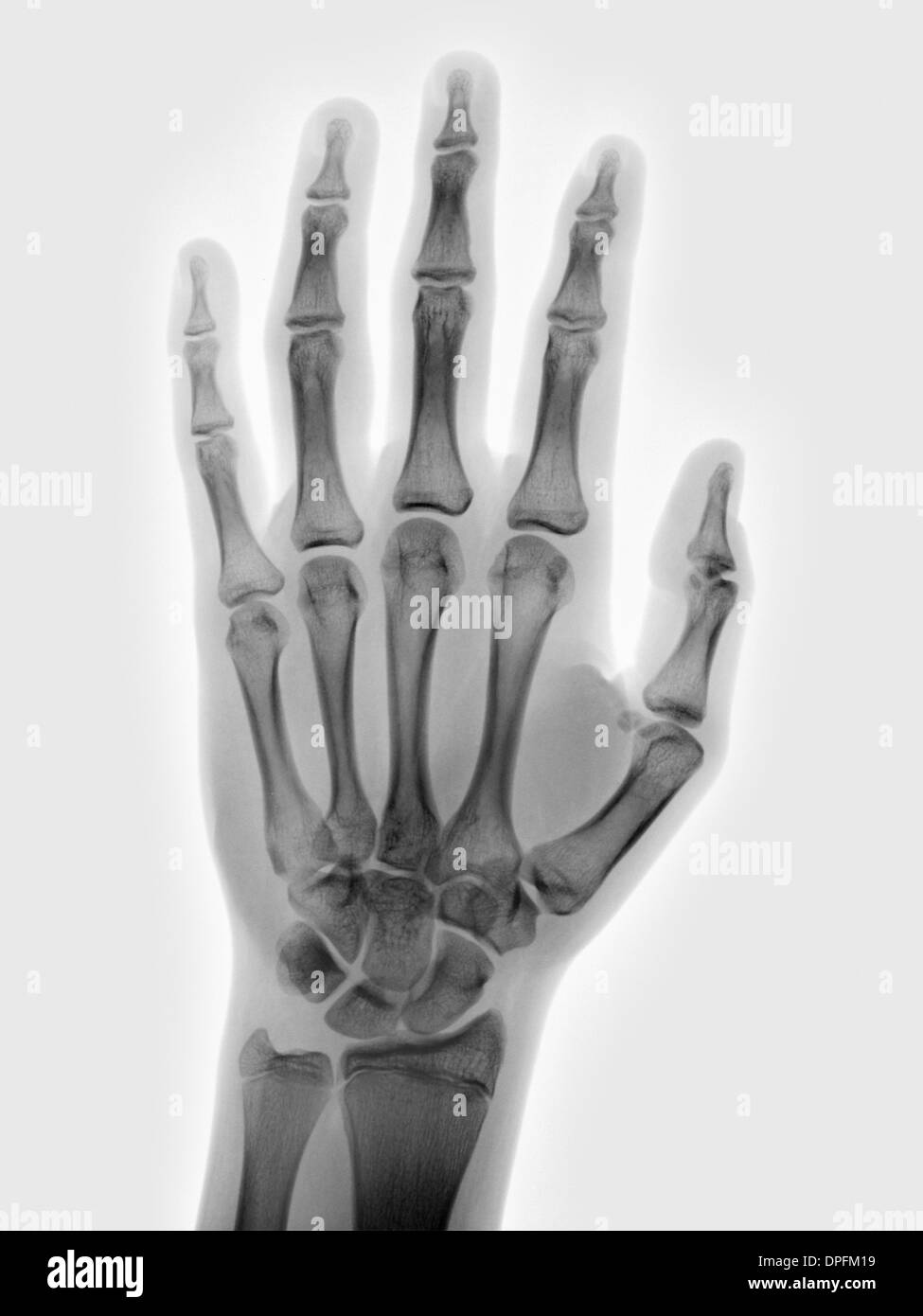 Normal Hand X Ray Of A 15 Year Old Boy Stock Photo 65498533 Alamy