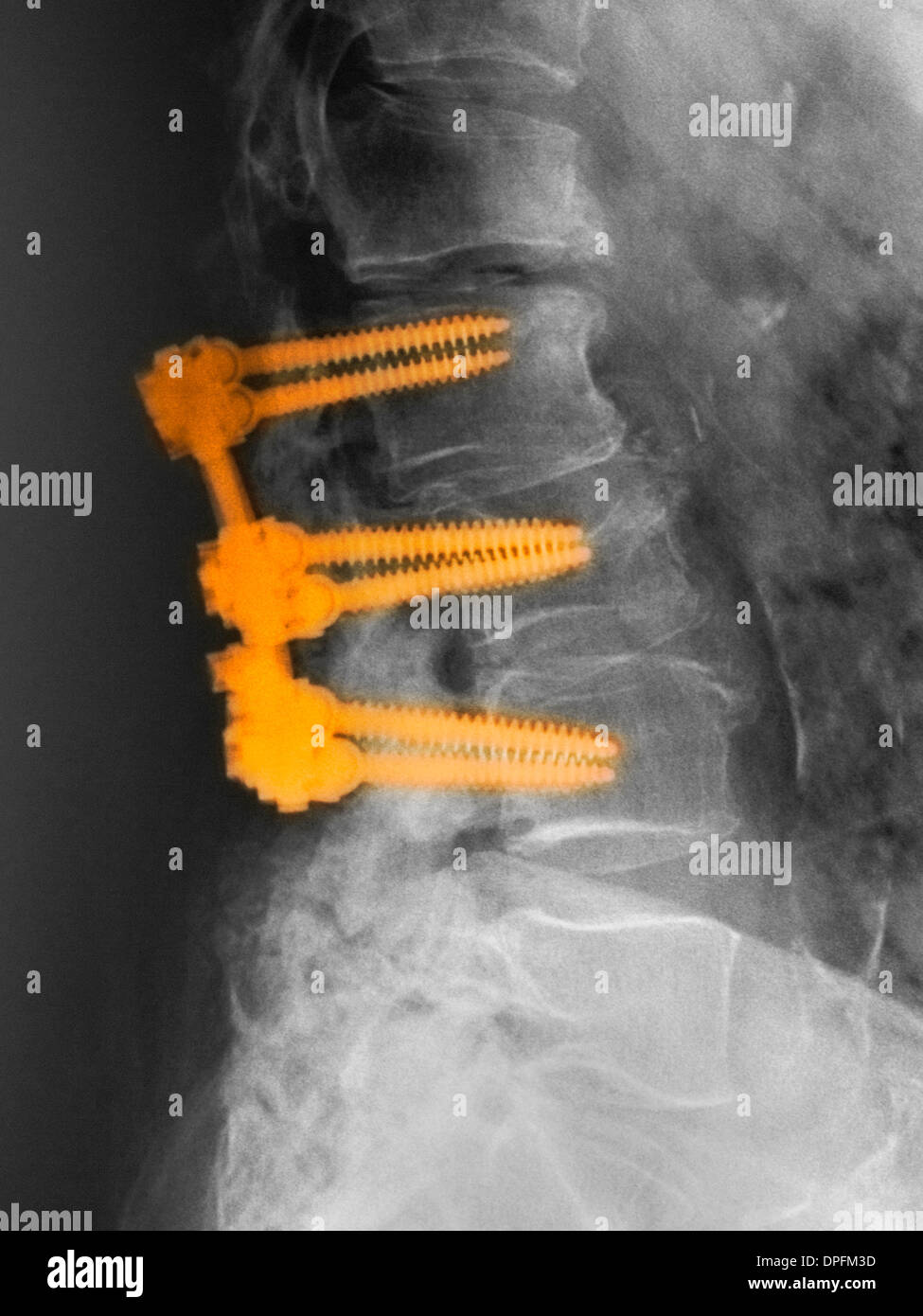 lumbar spine with spinal fusion hardware - Stock Image