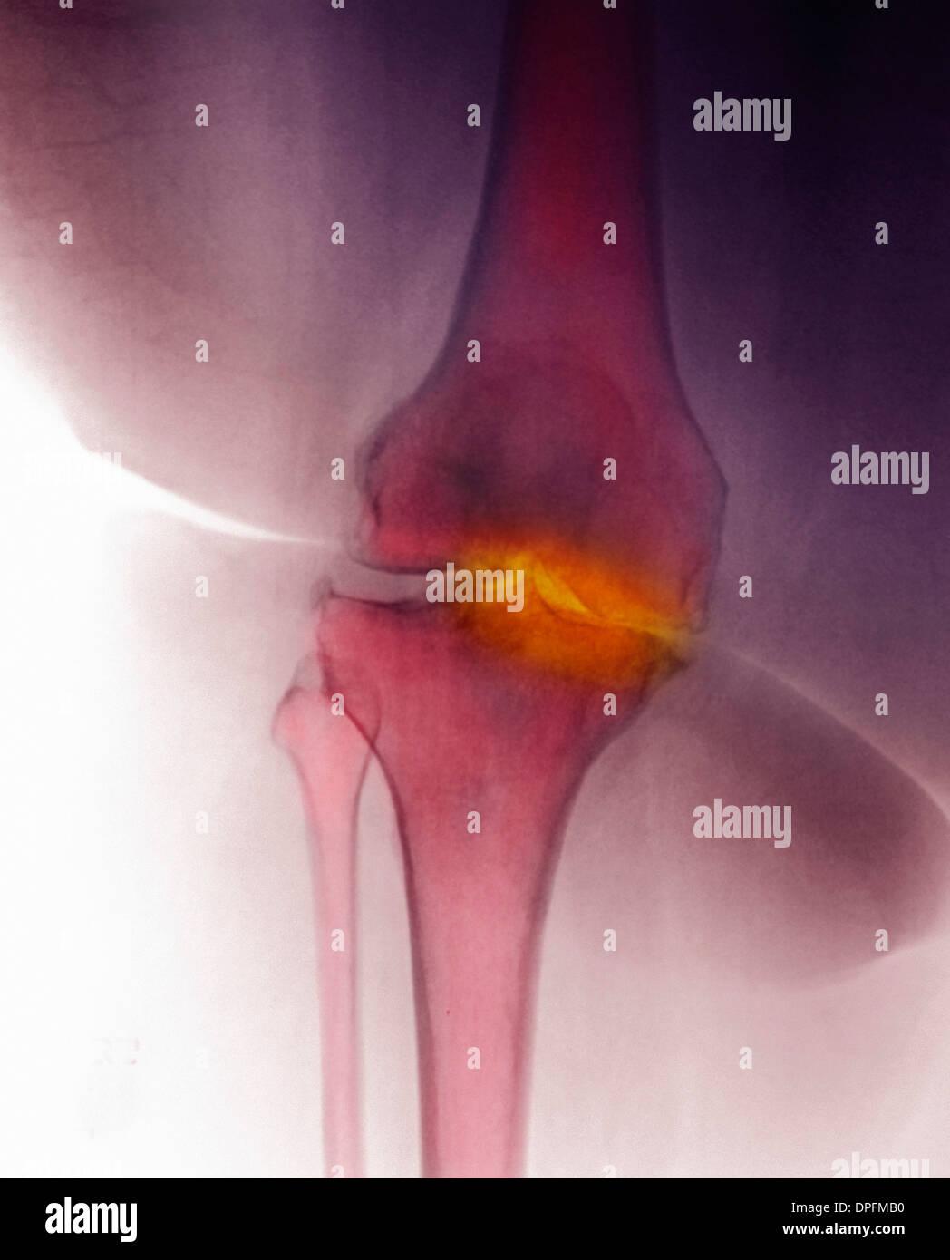 x-ray of knee showing degenerative arthritis - Stock Image