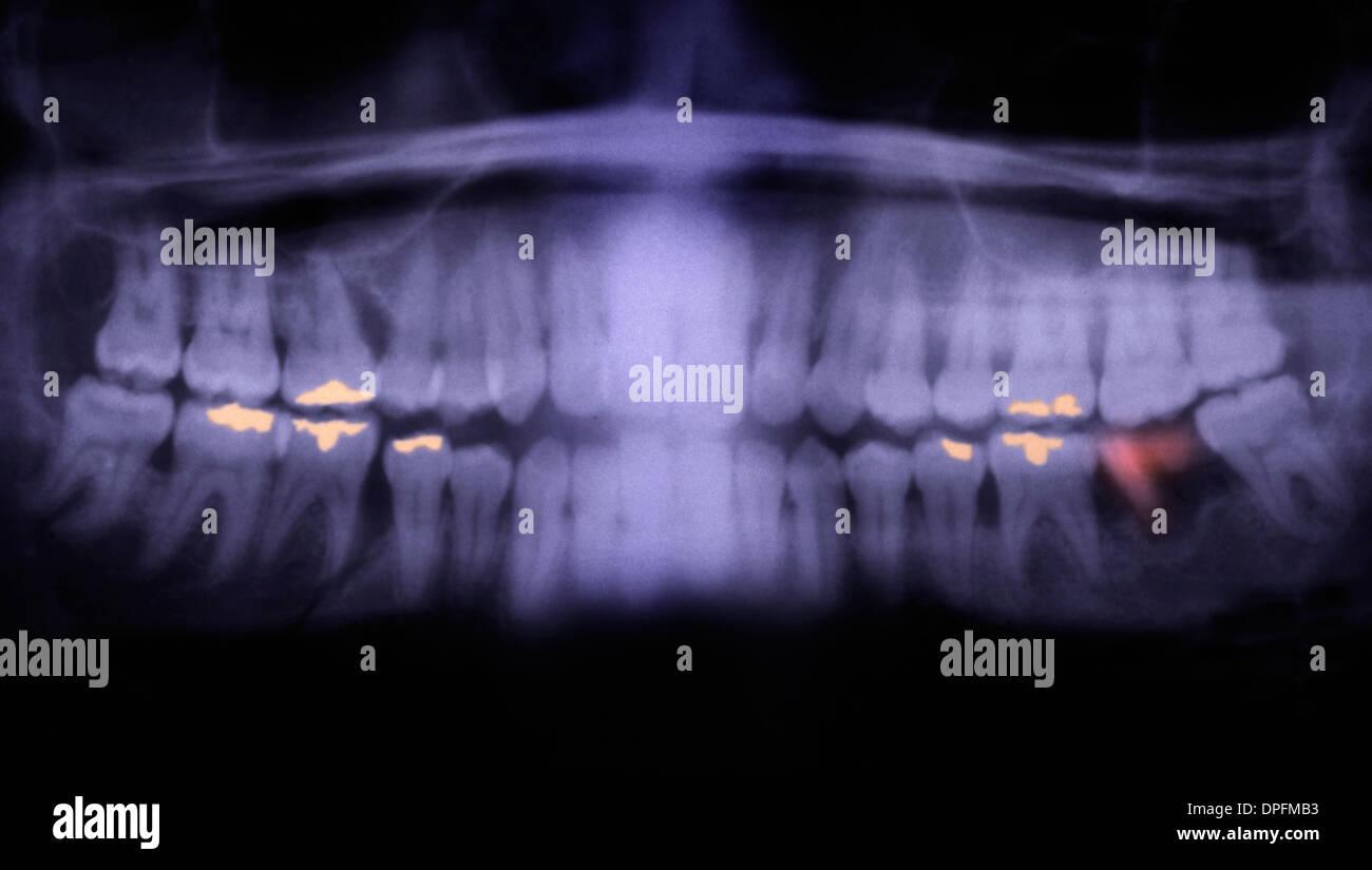 Panorex of teeth showing cavities - Stock Image