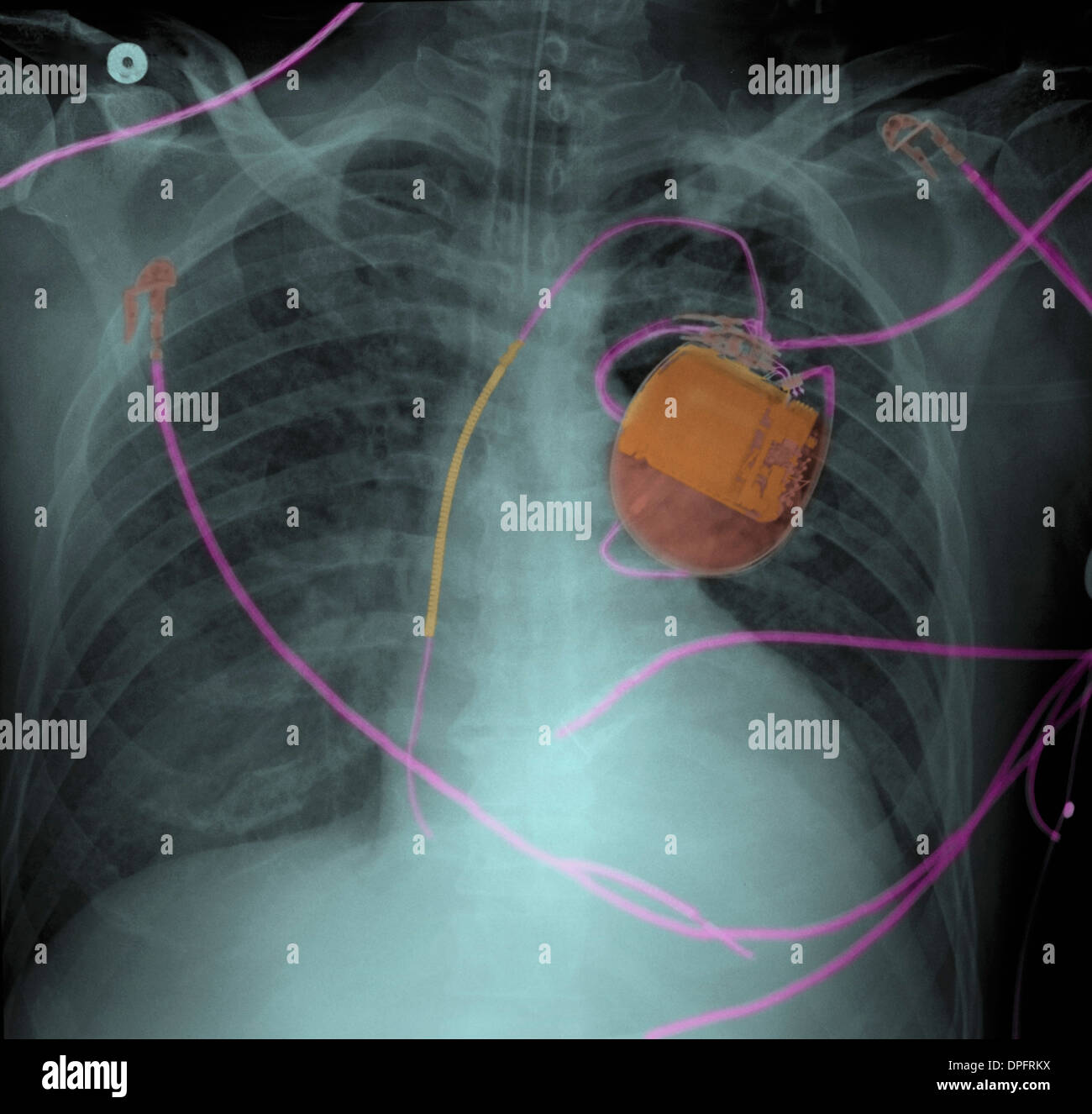 Chest x-ray of pacemaker and pulmonary edema - Stock Image