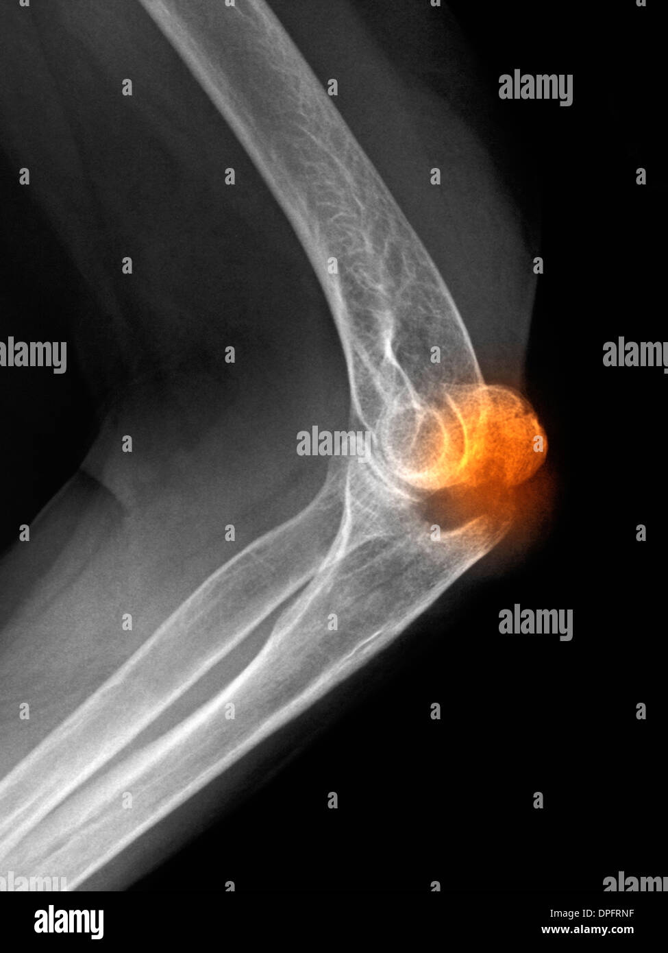 x-ray of an olecranon fracture - Stock Image